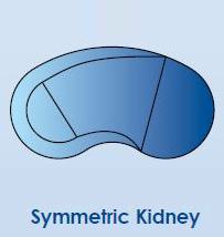 Symetric Kidney